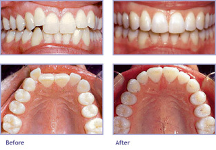 Invisalign: Before & After